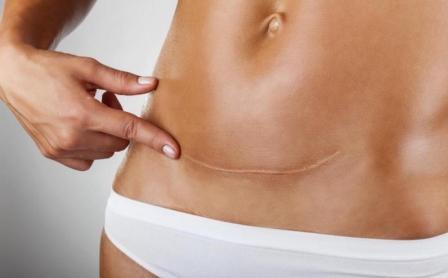 Кесарево сечение - когда оно необходимо и как проводится