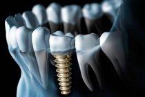 Имплантация зубов во время беременности
