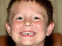 Если ребенку в школе выбили зуб