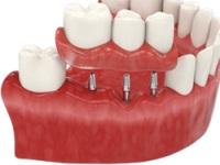 ROOTT-имплантация зубов