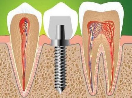 Сколько стоит имплантация одного зуба?