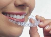 Способы выравнивания зубов