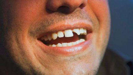 Плохие привычки из-за которых можно потерять зубы